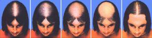 alopecia-fem-2