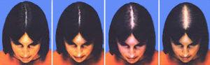 alopecia-femen